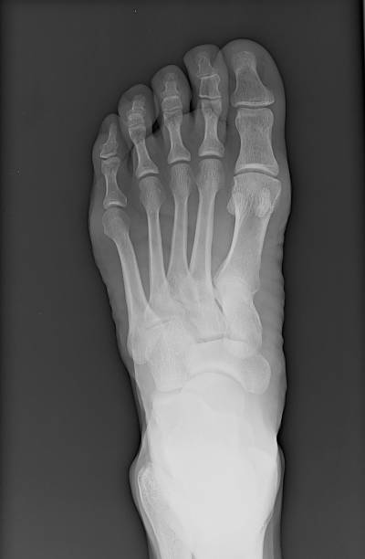 pied gauche x-ray - os du pied photos et images de collection
