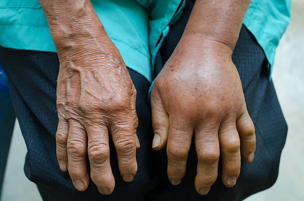 left hand inflammation from the green pit viperb snake bite stock photo