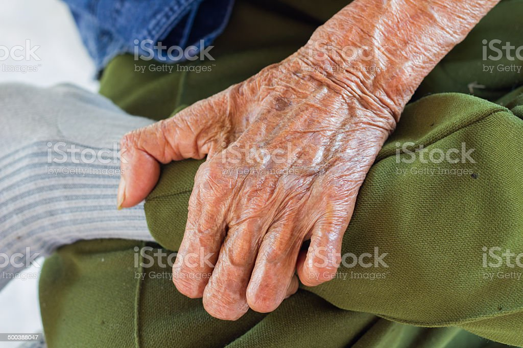left hand of a leprosy stock photo