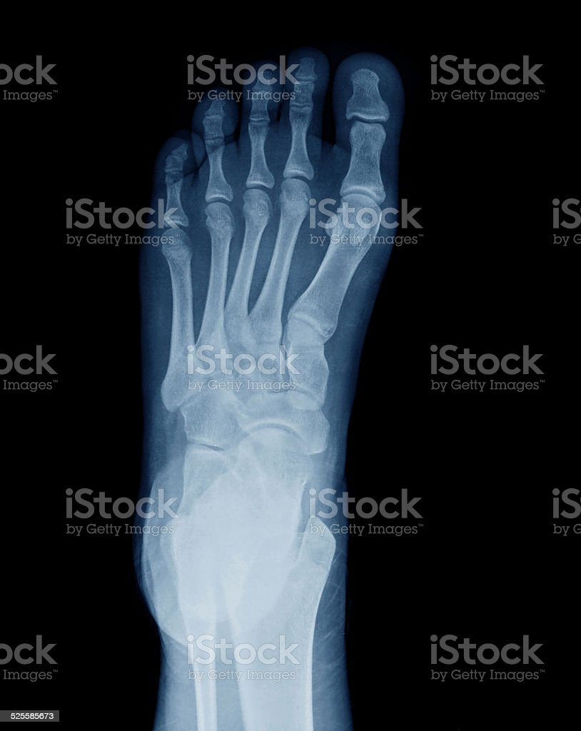 Left Human Foot Xray From Bottom Stock Photo More Pictures Of