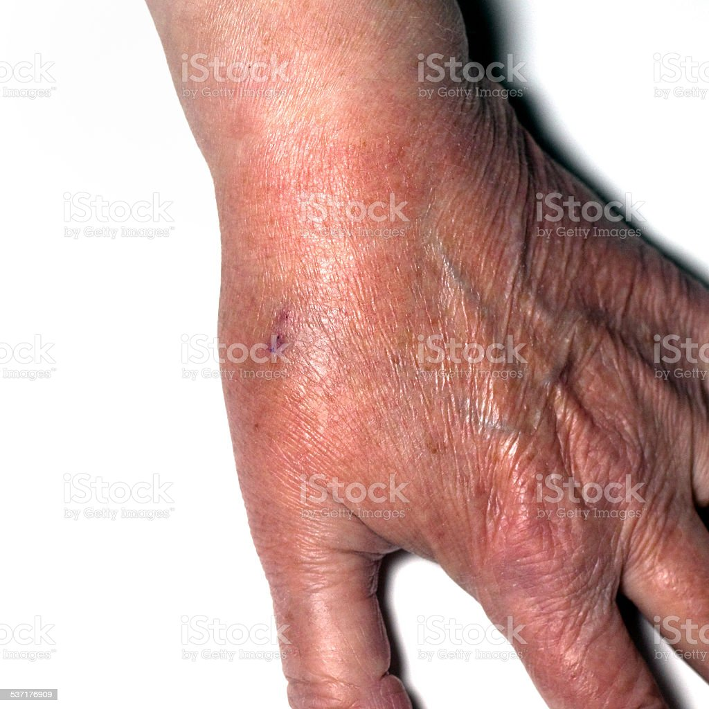 Left thumb with wounds from steroid injections in joint stock photo