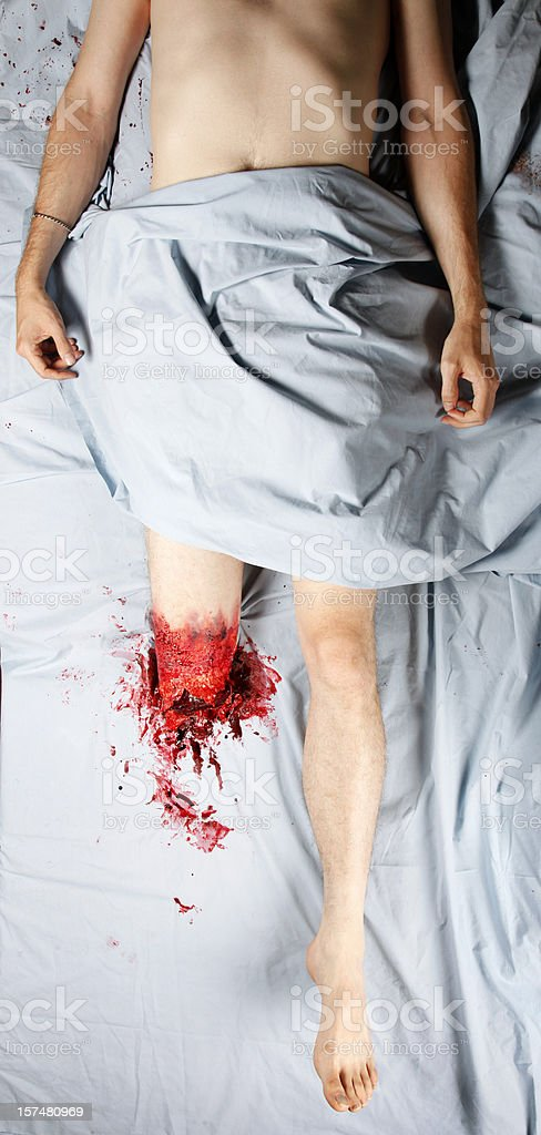 Leg Amputation royalty-free stock photo