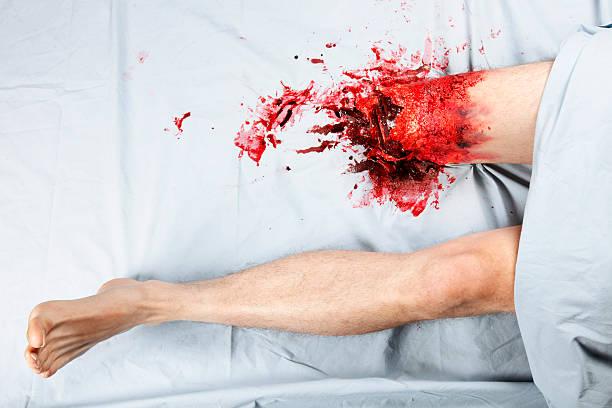 jambe excision - membre photos et images de collection