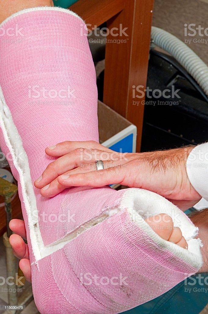 Leg Cast removal stock photo