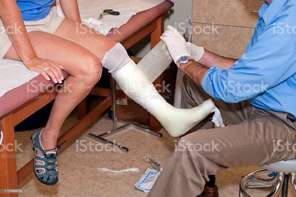 Leg Casting royalty-free stock photo
