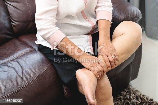 875123630istockphoto leg cramp, senior woman suffering from leg cramp pain at home, health problem concept 1186249237