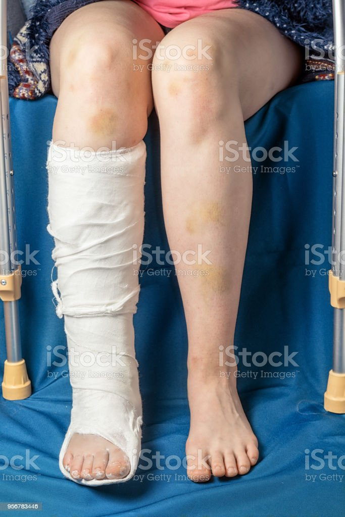 Leg Fracture In Gypsum And Crutches Close Up Only Legs Of Sitting