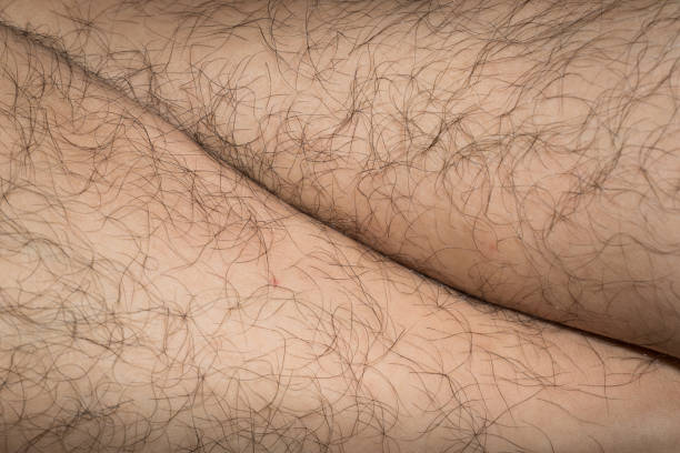 Poils des jambes - Photo