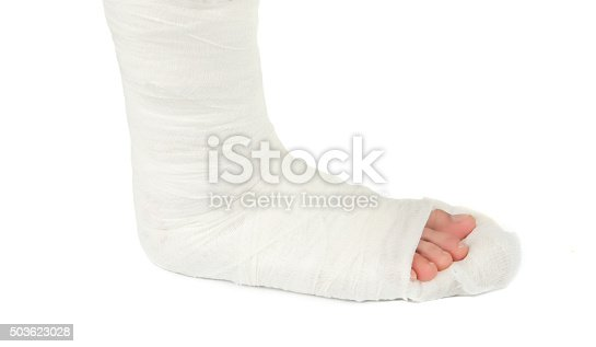 istock leg in a plaster cast 503623028