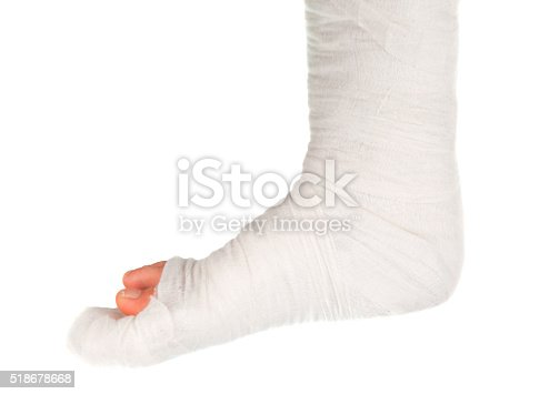 istock leg in a plaster cast 518678668