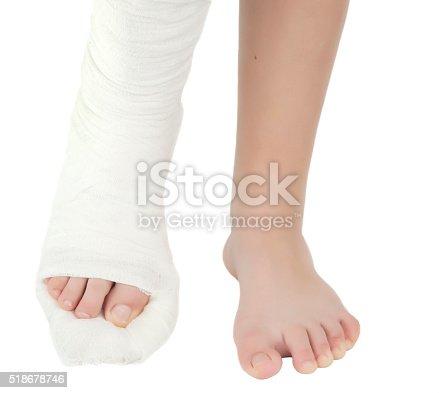 istock leg in a plaster cast 518678746