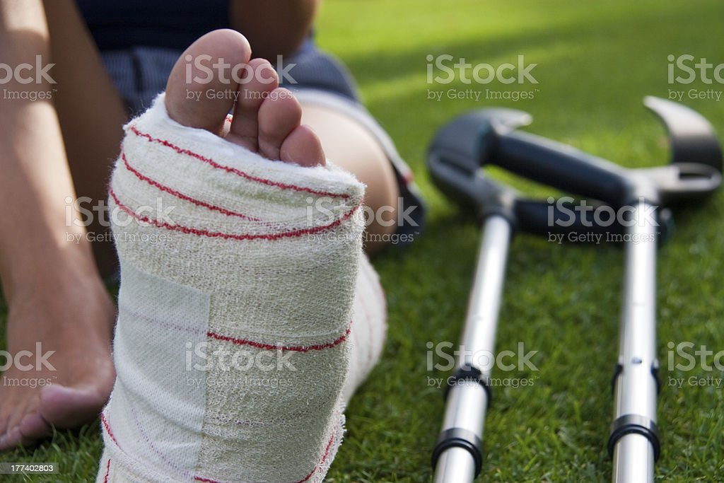 leg in plaster and crutches stock photo