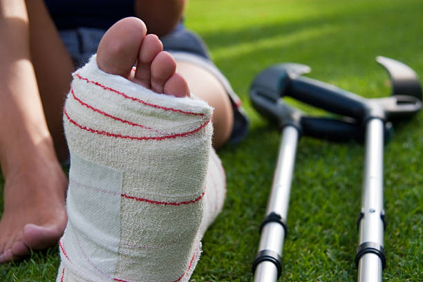 leg in plaster and crutches - broken leg stock photos and pictures