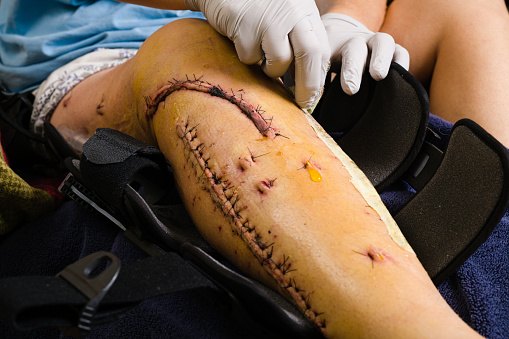 Leg Injury with Stitches - Tibial Plateau fracture requiring several surgeries leaving wounds with stitches. Female leg with scars from surgery.