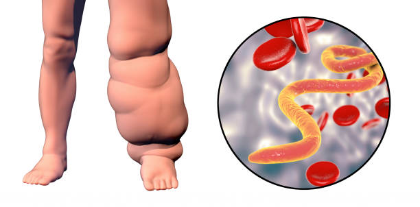 Leg of a person with elephantiasis, lymphatic filariasis Leg of a person with elephantiasis, or lymphatic filariasis and close-up view of microfilariae in blood, 3D illustration. A disease caused by worms Wuchereria bancrofti, transmitted by mosquito bite nematode worm stock pictures, royalty-free photos & images