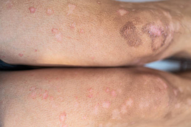 Leg of Asian man skin Psoriasis dry skin problem stock photo