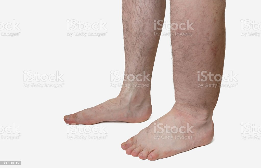 Leg of diseased patient who suffers from Edema. stock photo