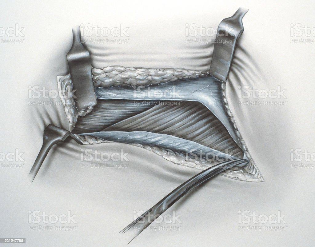 Leg Surgery stock photo