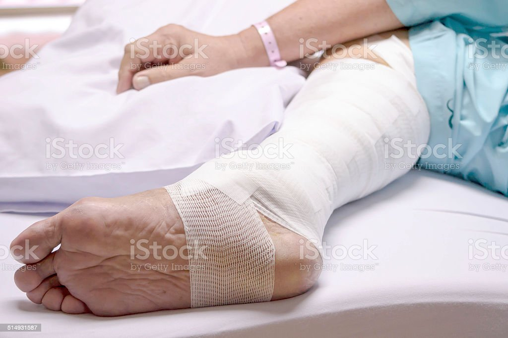 leg surgery stapled wound in the hospital stock photo