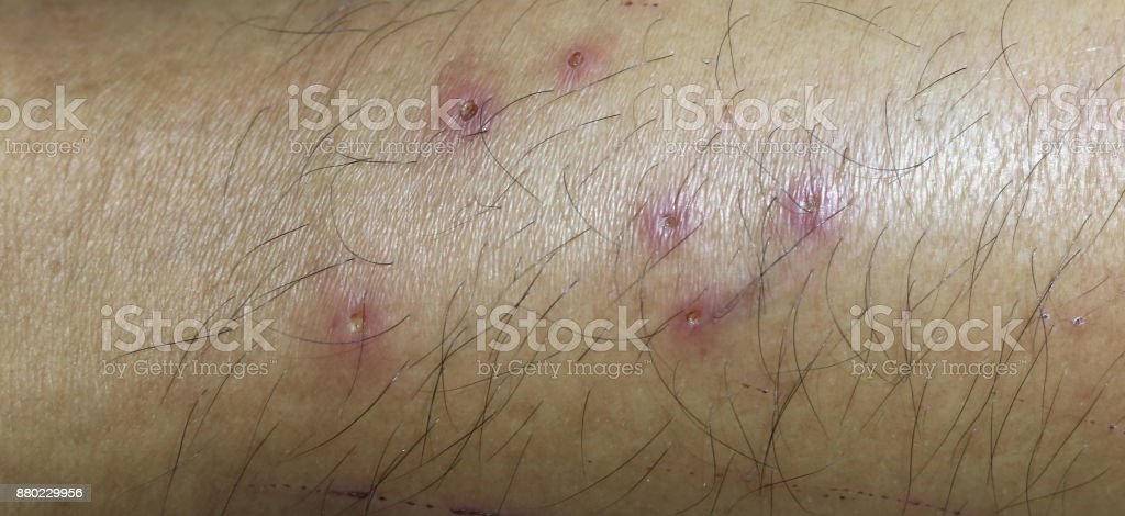 Leg ulcers, gangrene caused stock photo