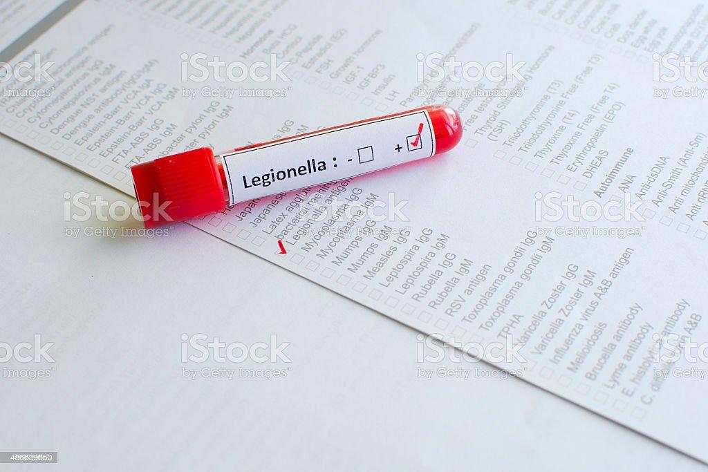 Legionella positive stock photo