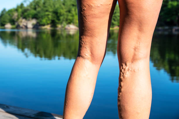 Beine einer reifen Frau mit Krampfadern – Foto