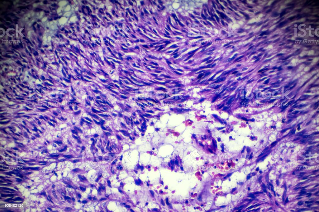 Leiomyoma (uterus) biopsy sample under light microscopy stock photo