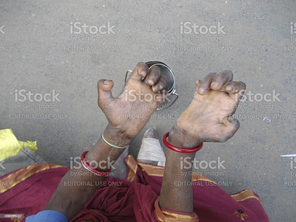 Leprosy patient begs for survival. stock photo