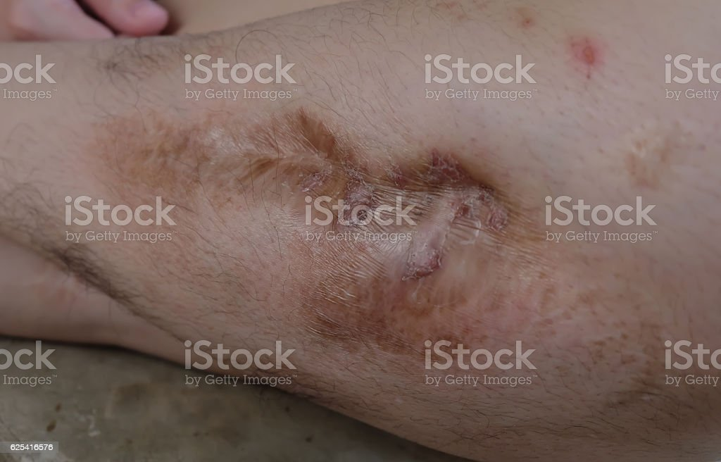 lesions stock photo