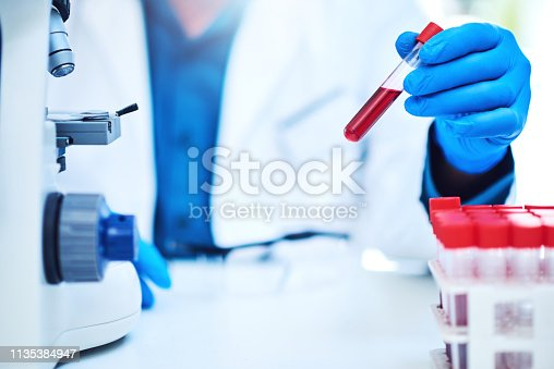 Closeup shot of a scientist analyzing samples in a laboratory