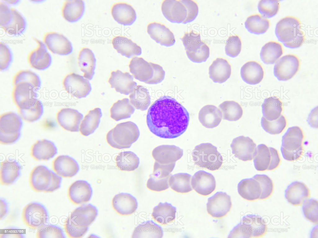 Leukemia cell stock photo