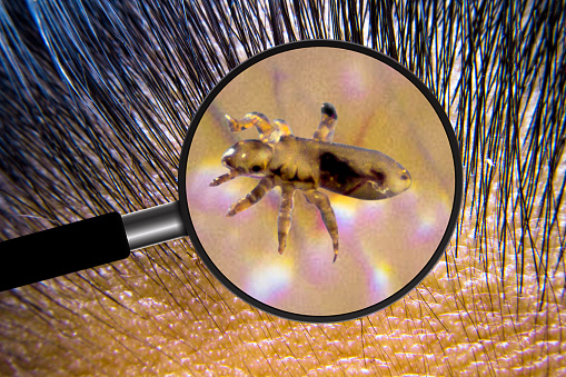 Lice are animals that feed on the blood of people on the scalp.