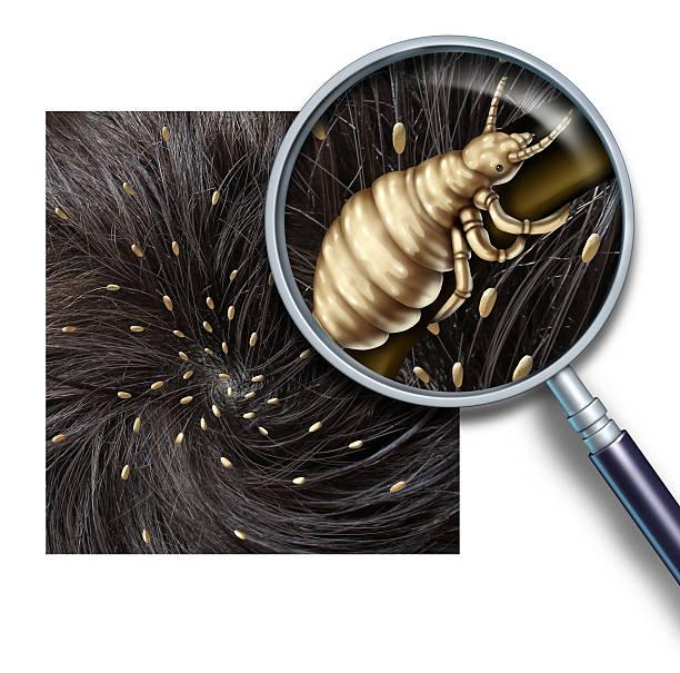 lice problem - kopfläuse was tun stock-fotos und bilder