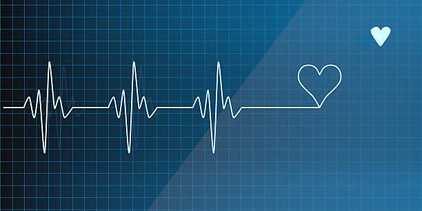 Salvavidas en un electrocardiograma - foto de stock