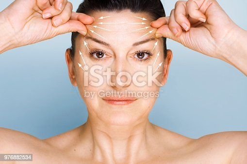 Portrait of 50 year old woman looking at camera, lifting her forehead wrinkles with guidelines showing lifting direction