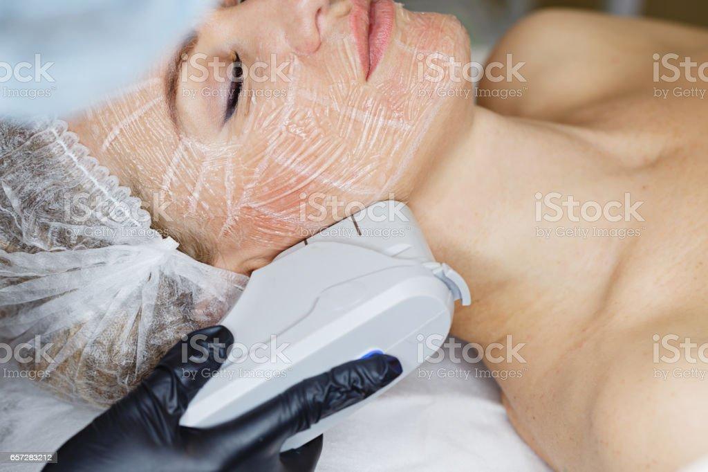 SMAS lifting Ultrasound stock photo
