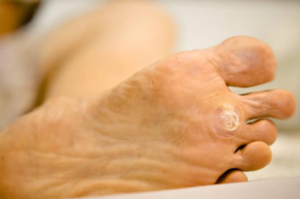 lumière de focus éclairage led sur la verrue traitement sur pied par l'acide salicylique. - verrue pied photos et images de collection