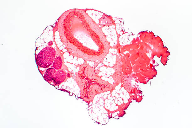 Light micrograph of a muscular artery – Foto