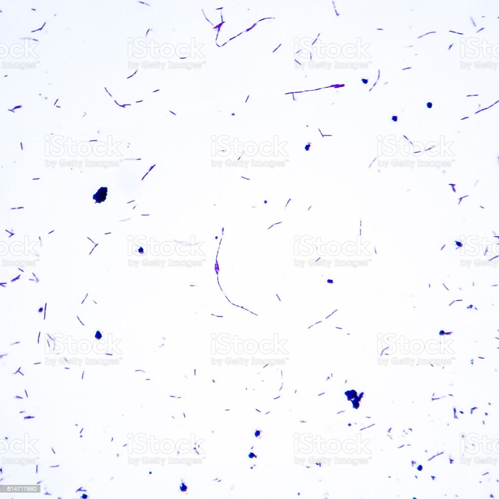 Light micrograph of bacteria Bacillus anthracis stock photo