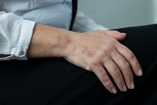 A line of bed bug bites, several days old, on a woman's hand