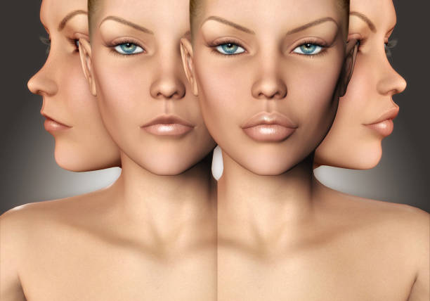 Lip Augmentation 3d model showing before and after stock photo