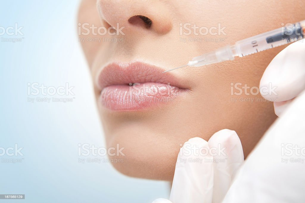 Lip augmentation. stock photo