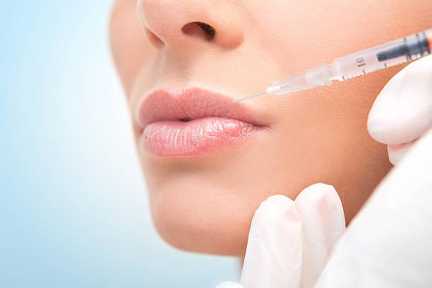 Lip augmentation. stock photo