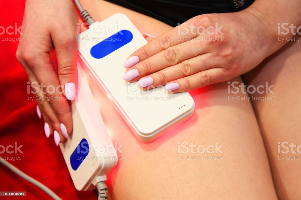 lipo laser. Hardware cosmetology. Body care. Non surgical body sculpting. body contouring treatment, anti-cellulite and anti-fat therapy in beauty salon - foto stock