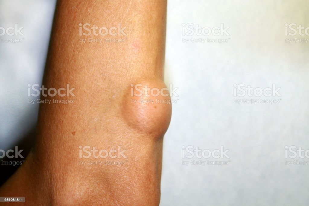 Lipoma on the elbow of the arm stock photo