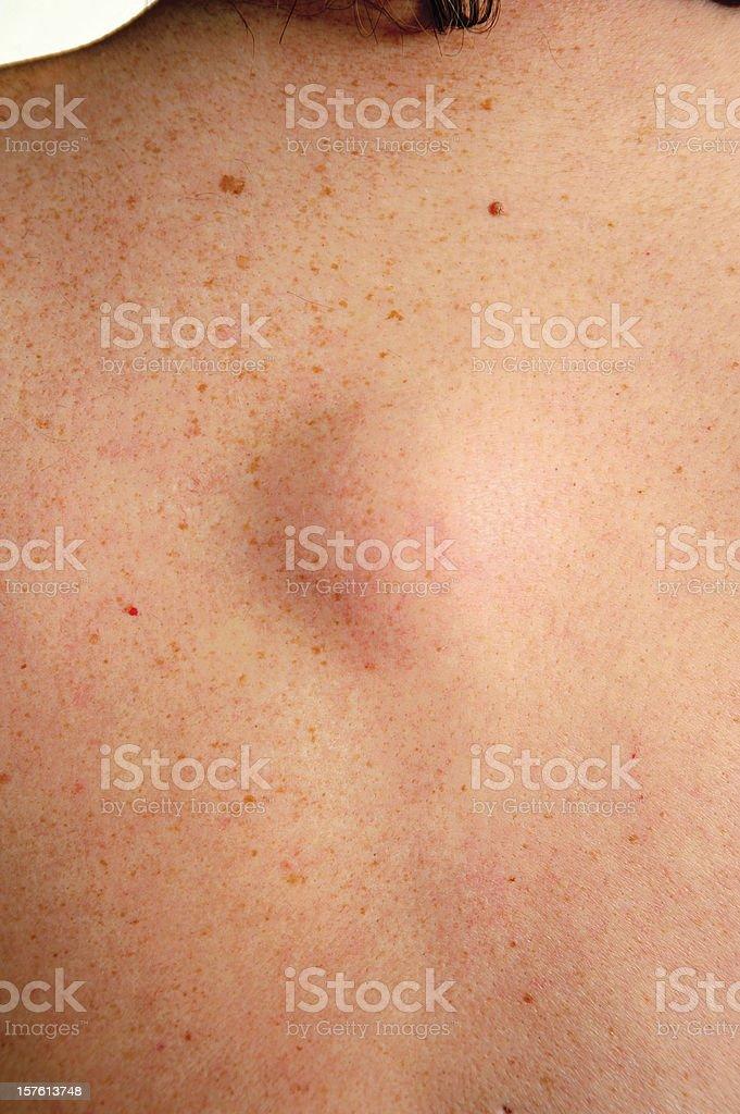 Lipoma Tumor royalty-free stock photo
