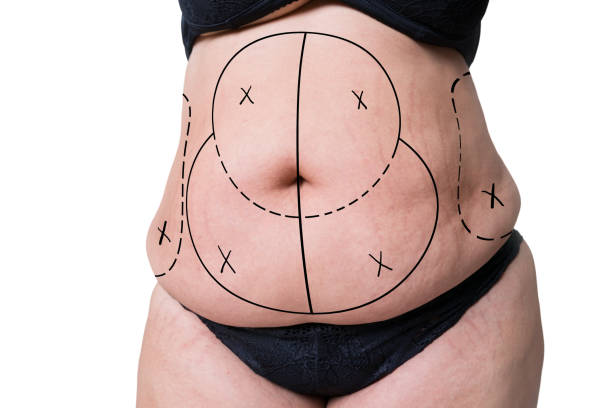 Liposuction, fat and cellulite removal concept, overweight female body with painted lines and arrows Liposuction, fat and cellulite removal concept, overweight female body with painted lines and arrows, isolated on white background liposuction stock pictures, royalty-free photos & images