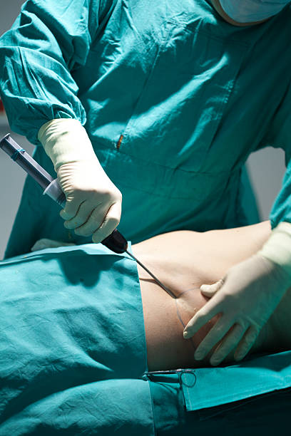 Liposuction The suction needle  goes deep inside the patient skin absorbing the fat cells. suction tube stock pictures, royalty-free photos & images