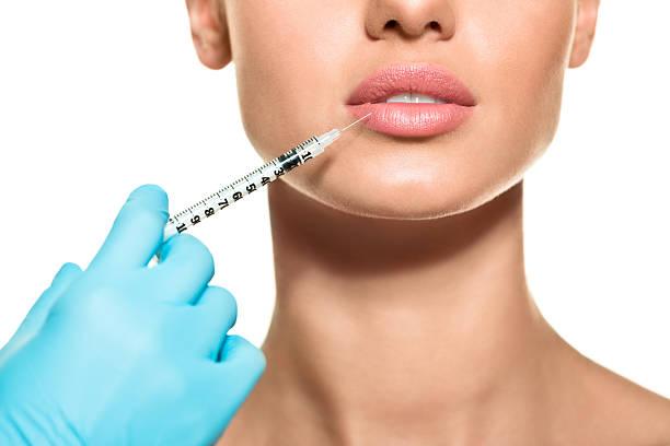 Lips augmentation stock photo