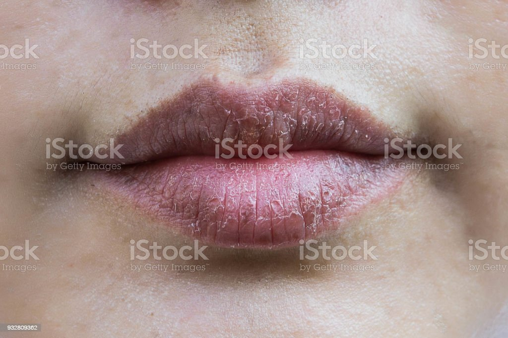 Lips hypersensitive to dry lips, Lips allergic to chemicals , Black lips stock photo